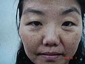 神奇保養品~黑斑雀斑,粉刺痘痘,黑眼圈,細紋敏感,臘黃鬆弛,OUT:雀斑,黯沈,痘痘,粗糙,乾躁.細紋...........