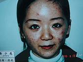 神奇保養品~黑斑雀斑,粉刺痘痘,黑眼圈,細紋敏感,臘黃鬆弛,OUT:痤瘡,痘疤