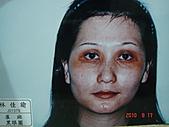 神奇保養品~黑斑雀斑,粉刺痘痘,黑眼圈,細紋敏感,臘黃鬆弛,OUT:黑眼圈,雀斑