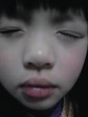 大眼娃娃皮皮蓁(不定期增加):這次是去嘴唇去打了玻尿酸......