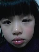 大眼娃娃皮皮蓁(不定期增加):天嗎,蚊子也超愛我的臉了吧,但這次竟然是嘴唇!