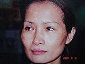神奇保養品~黑斑雀斑,粉刺痘痘,黑眼圈,細紋敏感,臘黃鬆弛,OUT:黑皮症,臘黃