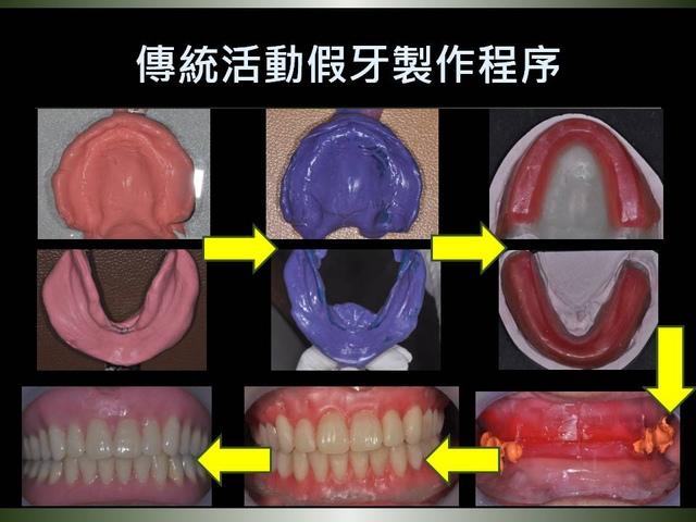 投影片2.JPG - 迷你植體運用於下顎平坦牙床