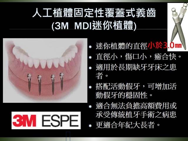 投影片6.JPG - 迷你植體運用於下顎平坦牙床
