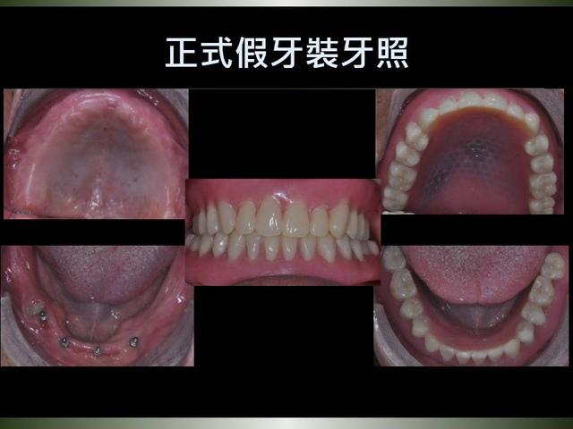 投影片24.JPG - 迷你植體運用於下顎平坦牙床