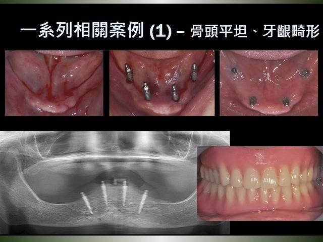 投影片25.JPG - 迷你植體運用於下顎平坦牙床