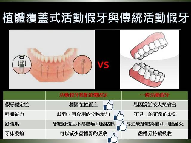 投影片7.JPG - 迷你植體運用於下顎平坦牙床