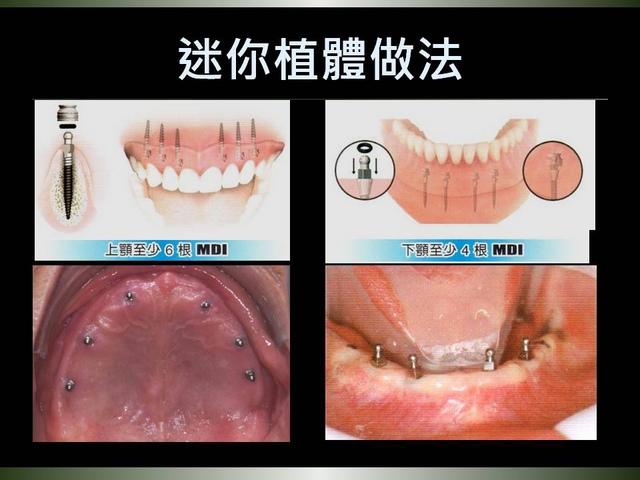 投影片8.JPG - 迷你植體運用於下顎平坦牙床