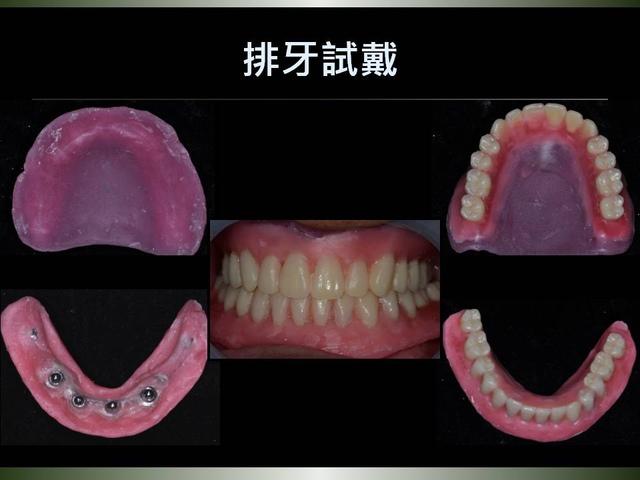 投影片23.JPG - 迷你植體運用於下顎平坦牙床