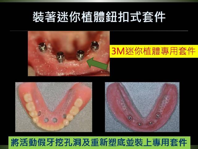 投影片11.JPG - 迷你植體運用於下顎平坦牙床