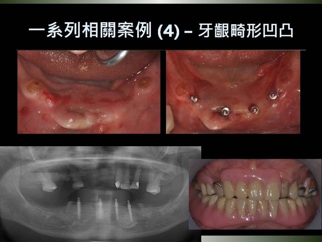 投影片28.JPG - 迷你植體運用於下顎平坦牙床