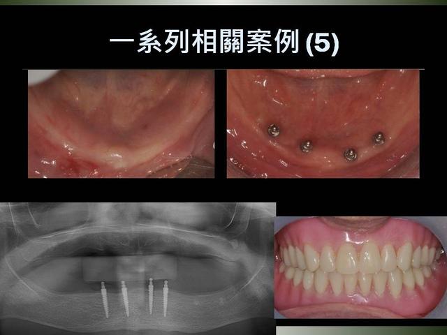 投影片29.JPG - 迷你植體運用於下顎平坦牙床