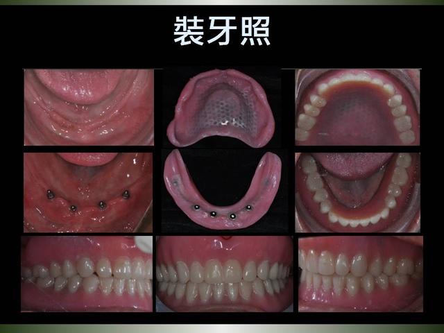投影片18.JPG - 迷你植體運用於下顎平坦牙床