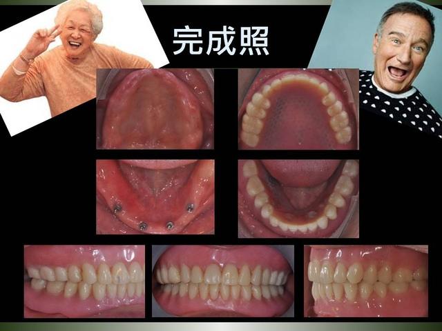 投影片12.JPG - 迷你植體運用於下顎平坦牙床