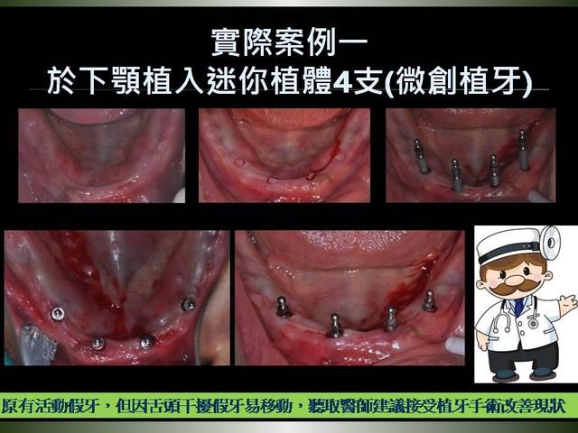 投影片9.JPG - 迷你植體運用於下顎平坦牙床