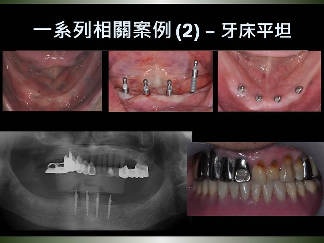 投影片26.JPG - 迷你植體運用於下顎平坦牙床