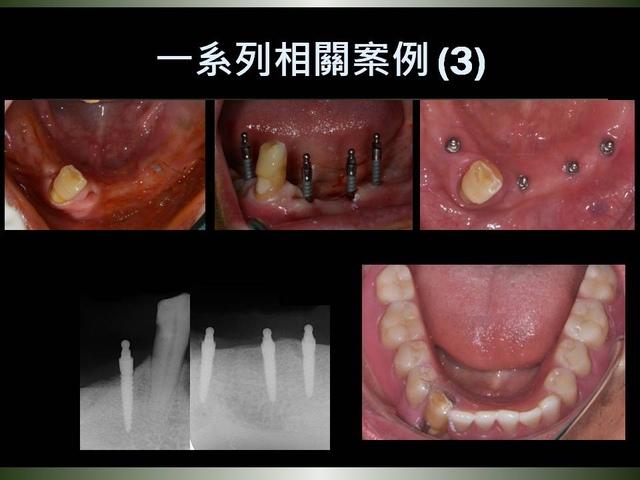 投影片27.JPG - 迷你植體運用於下顎平坦牙床
