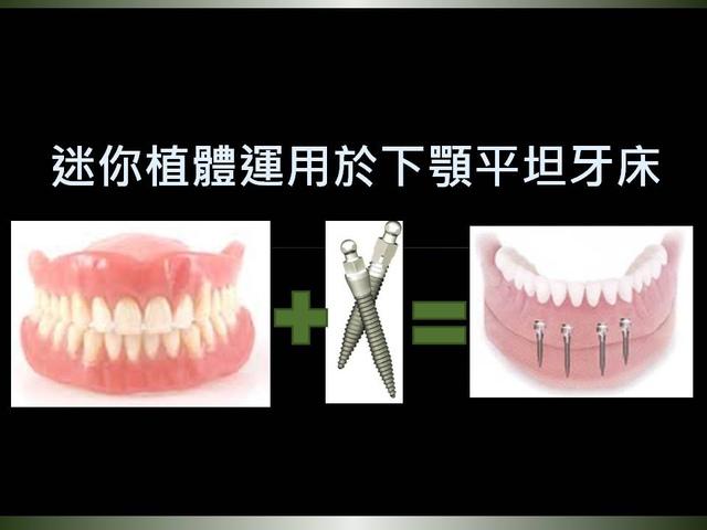 投影片1.JPG - 迷你植體運用於下顎平坦牙床