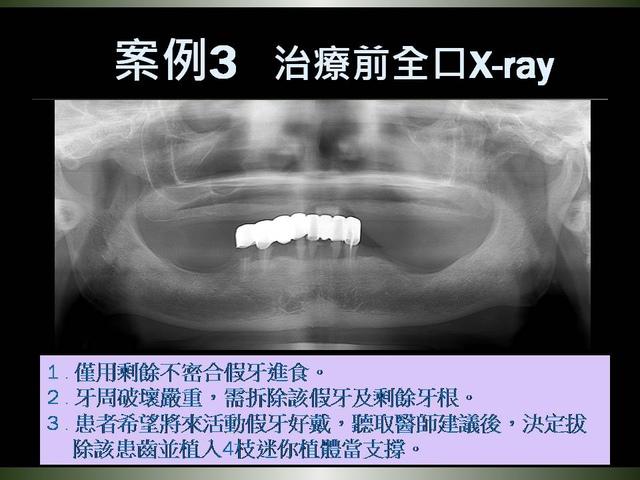投影片19.JPG - 迷你植體運用於下顎平坦牙床